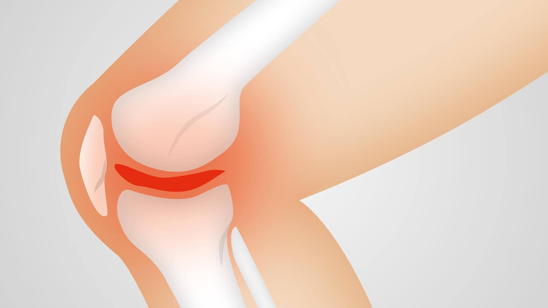 que es la artrosis y como frenarla