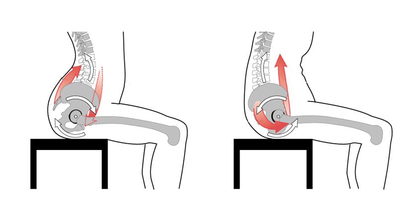 Dolor en la parte baja de la espalda codycross